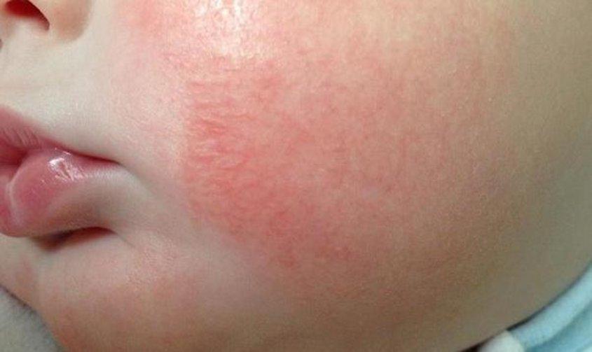 аллергическая сыпь у ребенка фото