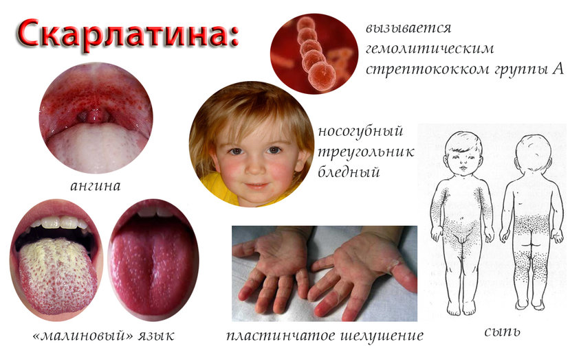 способы заражения человека паразитами