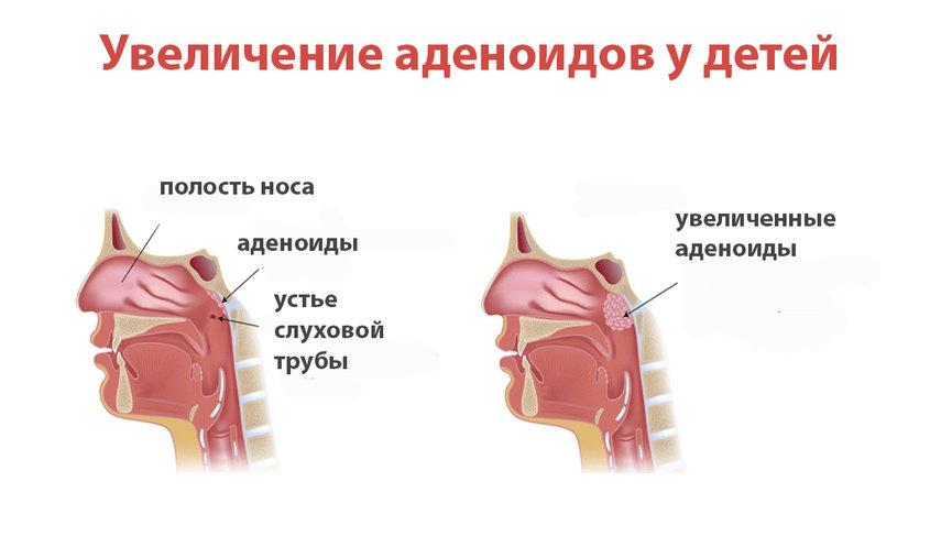 Признаки увеличенных аденоидов у ребенка